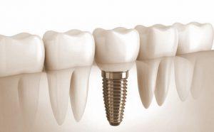 относится ли лечение зубов к перечню дорогостоящего лечения для 3 НДФЛ в стоматологии
