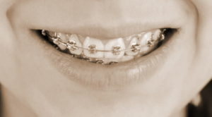 Брекеты позволяют выровнять зубы и исправить прикус. Это достаточно дорогое удовольствие, но у Вас есть возможность вернуть часть потраченных средств