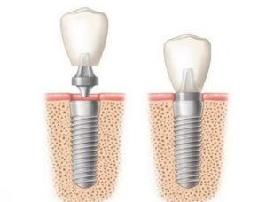 Сколько можно вернуть за имплантацию зубов? Можно вернуть 13 процентов от стоимости лечения, но с некоторыми ограничениями