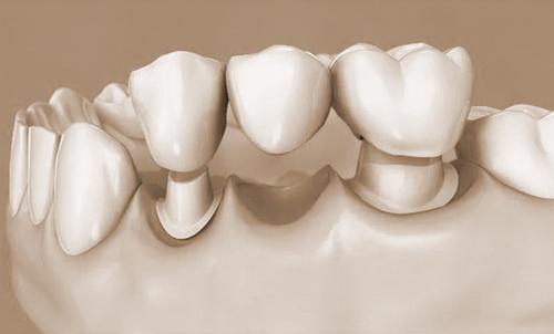 Протезирование зубов поможет восстановить зубной ряд, а оформление налогового вычета – вернуть потраченные деньги